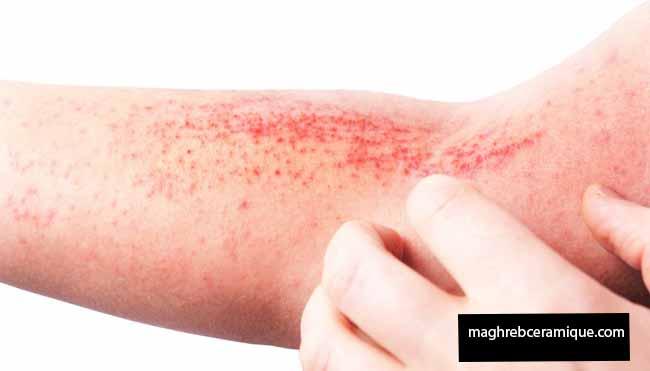 5 Atopic Dermatitis can Worsen Caution