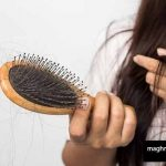5 nutrients that are essential for hair loss